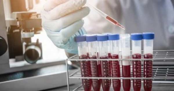 """SOS"" εκπέμπει ο  ΕΟΦ για ελλείψεις σε φαρμακευτικά παράγωγα αίματος"