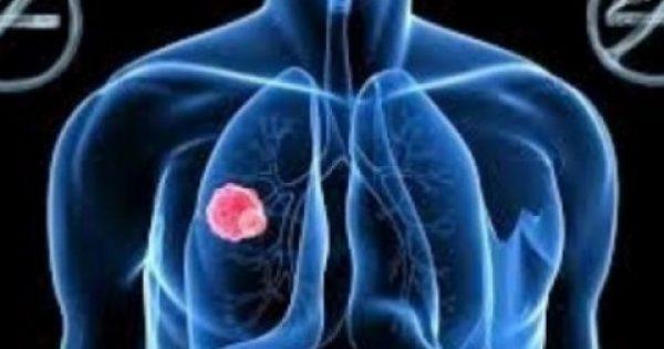 Να τι πρέπει να κάνετε για να μην πάθετε ποτέ καρκίνο του πνεύμονα