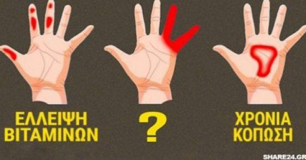 Τα Χέρια μπορούν να Προειδοποιήσουν με αυτά τα 7 Σημάδια την Υγεία μας! Κόπωση, Ανεπάρκεια Βιταμινών και Διαβήτης