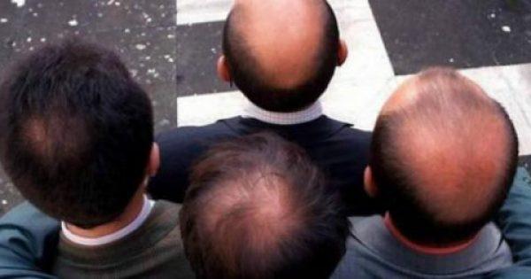 Ανάσα για εκατομμύρια άνδρες – Επιστήμονες ισχυρίζονται ότι βρήκαν την θεραπεία της φαλάκρας!