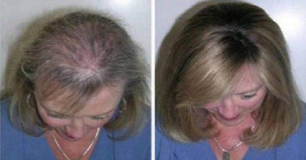 Είχε Αδύναμη Τρίχα και της έπεφταν τα Μαλλιά. Δείτε ΠΩΣ κατάφερε να τα Μεταμορφώσει και δεν θα το Πιστεύετε!