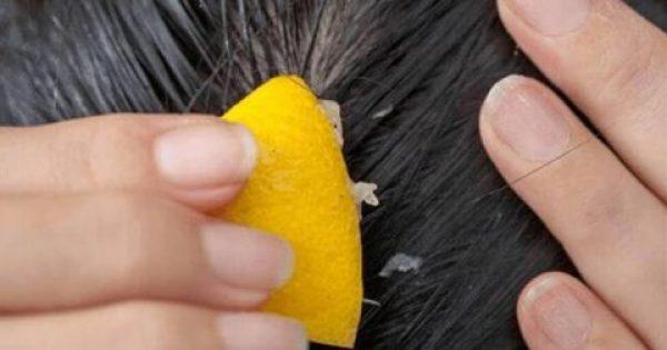 Καταπολεμήστε την τριχόπτωση με χυμό λεμόνι