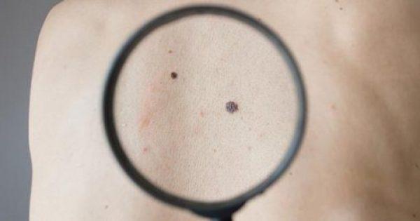 Ελιές στο δέρμα: Πότε δείχνουν κίνδυνο για καρκίνο
