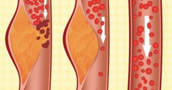 Τι είναι η δίαιτα ΝΤΑΣ και γιατί οι γιατροί την θεωρούν μια από τις καλύτερες για την υγεία