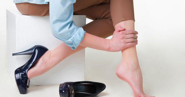 Κιρσοί: Απλές συμβουλές για να προστατέψετε τα πόδια σας