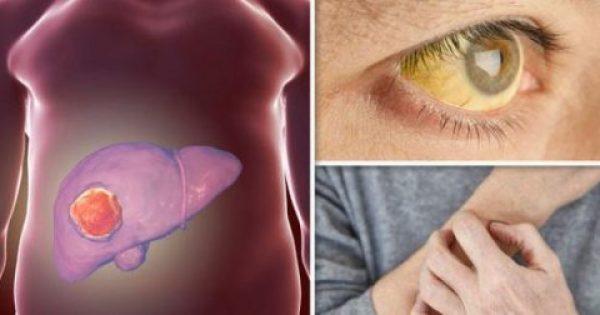 Καρκίνος του ήπατος: Επτά συμπτώματα που κρούουν τον κώδωνα του κινδύνου