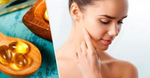 5 εκπληκτικοί τρόποι για να χρησιμοποιήσετε κάψουλες βιταμίνης Ε στο δέρμα σας