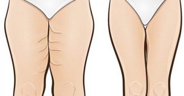 Σφίξτε τα χαλαρωμένα μπούτια σας και εξαφανίστε τις ραγάδες μέσα σε μόλις μία εβδομάδα. Θα μείνετε άφωνες με το αποτέλεσμα!