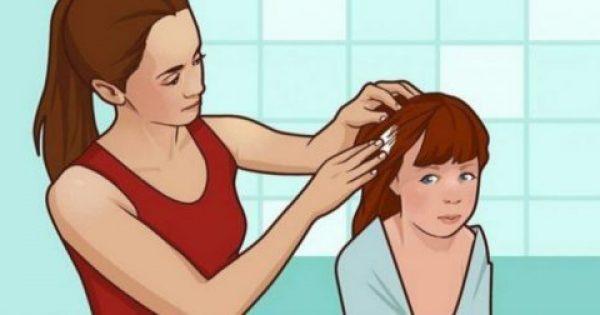Μια μαμά τρίβει μαγιονέζα πάνω στα μαλλιά της κόρη της.. Ο λόγος; Όλοι οι γονείς πρέπει να τον γνωρίζουν…