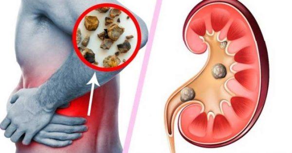 Καταστρέφετε τα νεφρά σας! 10 συνήθειες που πρέπει να αλλάξετε!!!