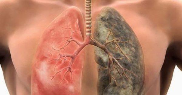 Έρευνα: Αυτές οι 6 τροφές καθαρίζουν τους πνεύμονες από τη νικοτίνη