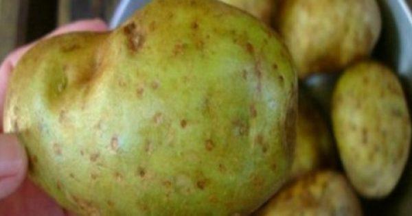 Προσοχή: Εάν δείτε ΑΥΤΟ στις Πατάτες σας, Πετάξτε τις Αμέσως… Θα σας Σώσει τη Ζωή!