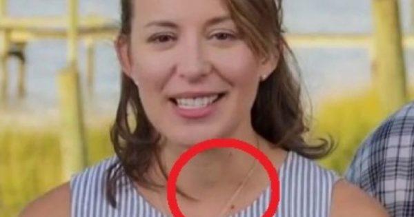 Γιατρός είδε ΑΥΤΟ σε γυναίκα που ήταν στην TV και την έσωσε από καρκίνο – Το βλέπετε;!!!-ΒΙΝΤΕΟ