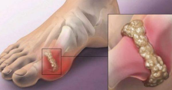 Πώς να καταπολεμήσετε την αρθρίτιδα και τους πόνους στις αρθρώσεις (Κρυσταλλοποίηση ουρικού οξέος)