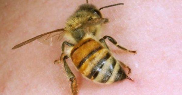 Αυτό είναι το ΜΟΝΟ πράγμα που πρέπει να κάνετε αν σας τσιμπήσει μέλισσα