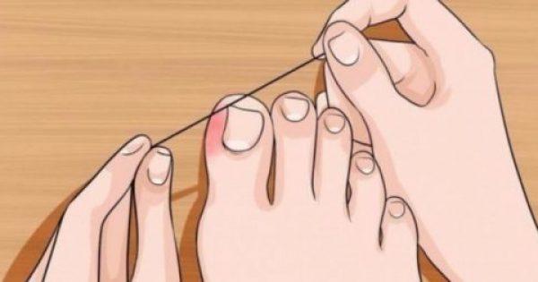6 Κανόνες Φροντίδας & Περιποίησης των Ποδιών, για να δείχνουν Πάντα Τέλεια με Ανοιχτά Παπούτσια