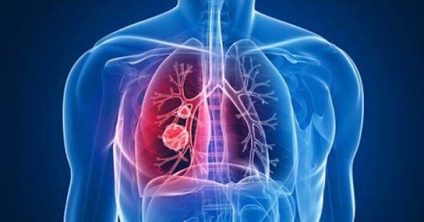 Νεότερα δεδομένα για τη θεραπεία σε ασθενείς με καρκίνο του πνεύμονα