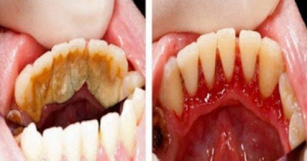 Γίνε ο οδοντίατρος του εαυτού σου! Κόλπα για να καθαρίσεις την πέτρα των δοντιών στο σπίτι σου