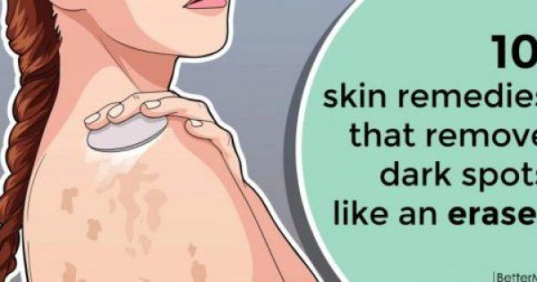 Οι 9 πιο αποτελεσματικές σπιτικές θεραπείες για το δέρμα που θα σβήσουν τα μαύρα σημάδια σαν γόμα