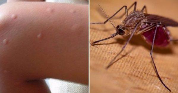 Αυτός είναι ο Λόγος που τα Κουνούπια προτιμούν να τσιμπούν κάποιους Ανθρώπους ενώ άλλους Όχι