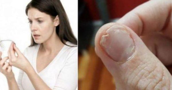 Xρειάζεται να φάτε αυτό αν έχετε απώλεια μαλλιών, εύθραστα νύχια ή αν δεν κοιμάστε καλά (φωτό)