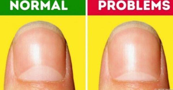 13 προβλήματα υγείας που μας δείχνουν τα μισοφέγγαρα που έχουμε στα νύχια