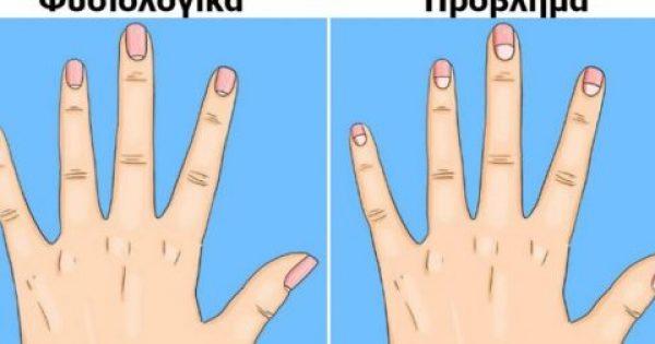 13 Σημαντικά Προβλήματα Υγείας, που Δείχνουν τα Μισοφέγγαρα στα Νύχια και Ούτε Καν τα Φανταζόμαστε