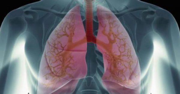 Πνευμονικό οίδημα: Τι πρέπει να κάνετε άμεσα!