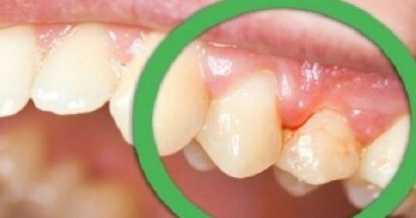 Εχεις αυτό στο δόντι σου; Δες αμέσως τι πρέπει να κάνεις…