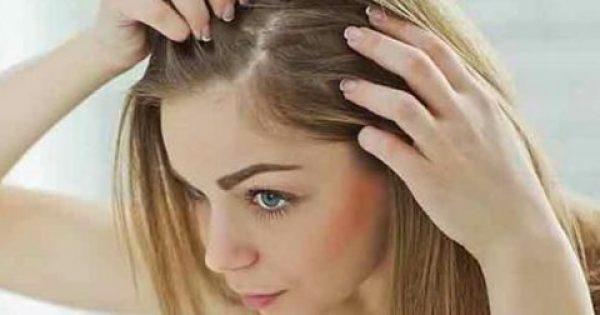 Τριχόπτωση: 16 λόγοι που κάνουν τα μαλλιά σας να πέφτουν