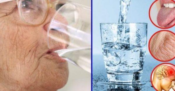 Οι Γιατροί Προειδοποιούν: Αυτά τα 8 Σημάδια, Δείχνουν Πως Δεν Πίνετε όσο Νερό Χρειάζεται ο Οργανισμό σας