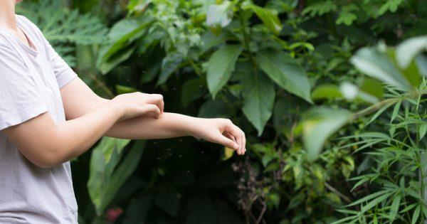 Τσίμπημα από κουνούπι: Τα συμπτώματα που δείχνουν σοβαρή αλλεργική αντίδραση