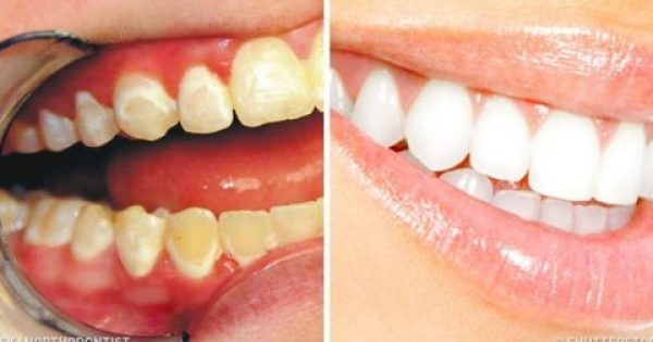 Τι τροφές πρέπει να τρώμε για να είναι τα δόντια μας λευκά και υγιή