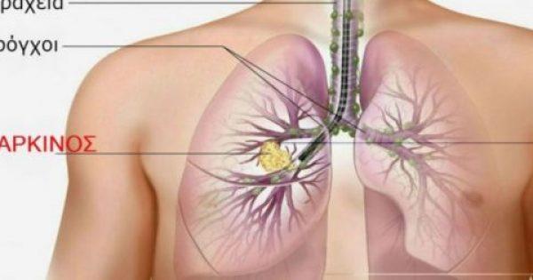 Kαπνίζετε; Τουλάχιστον αποτοξινωθείτε… Αυτές είναι οι 7 τροφές που καθαρίζουν τους πνεύμονες