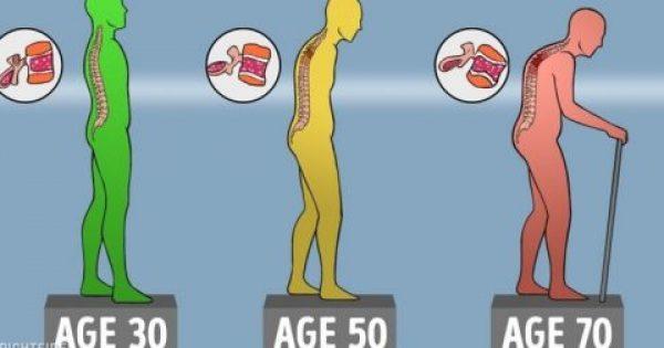 Τα οστά σας γίνονται όλο και πιο αδύναμα με τα χρόνια αλλά υπάρχουν τρόποι να τα κρατήσετε υγιή