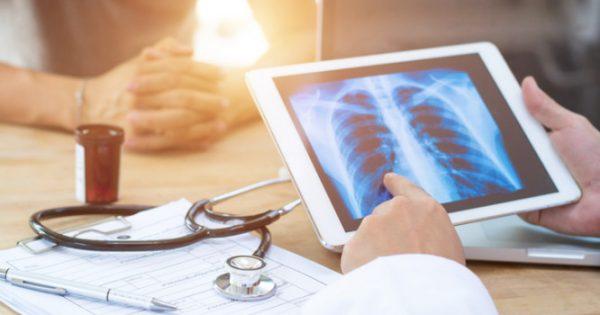 Καρκίνος του πνεύμονα: Οι συχνότερες αιτίες στους μη καπνιστές
