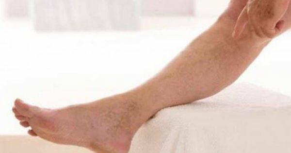 Φλεβική ανεπάρκεια, κιρσοί και ευρυαγγείες: Οσα πρέπει να ξέρετε