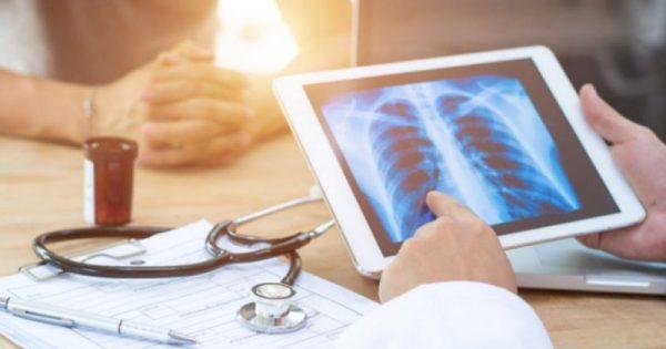 Καρκίνος του πνεύμονα: Οι συχνότερες αιτίες στους μη καπνιστές!!!