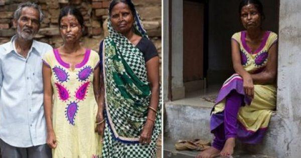 Μητέρα και κόρη συνεχίζουν να ζουν με τον άνδρα που τις παραμόρφωσε με οξύ λόγω φτώχειας