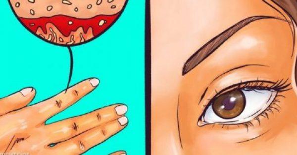 Οι Γιατροί Προειδοποιούν: 11 Ανυποψίαστα Σημάδια που Δείχνουν Πως ο Θυρεοειδής σας Δεν Δουλεύει Σωστά.
