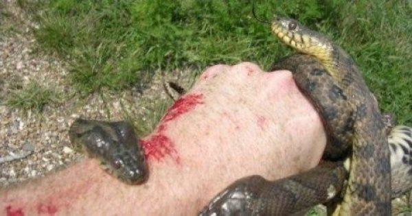 Σε Δάγκωσε φίδι; Δες τι ΠΡΕΠΕΙ να κάνεις! ΠΑΡΑΚΑΛΟΥΜΕ Κοινοποιήστε το, Σώζει Ζωές!
