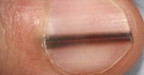 ΠΡΟΣΟΧΗ ! Γρήγορα στον γιατρό αν δείτε αυτό το σημάδι στο νύχι σας !!!