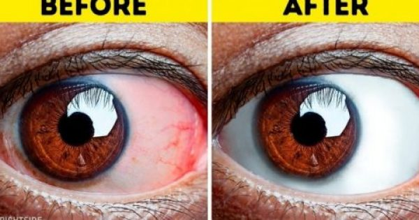 8 ασκήσεις που πρέπει να κάνουν ΟΛΟΙ όσου έχουν κουρασμένα μάτια