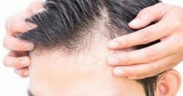 Τριχόπτωση – Φαλάκρα: Πέντε φυσικοί τρόποι για αναγέννηση μαλλιών