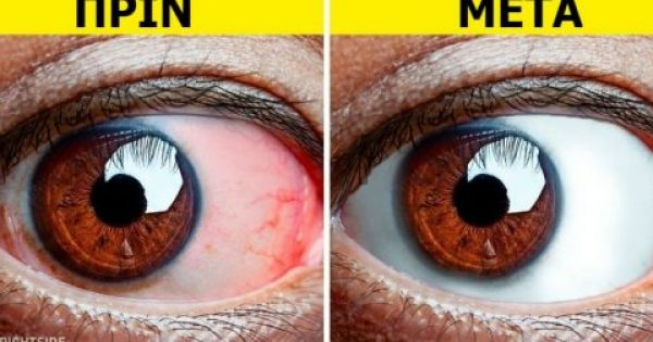 Οι Γιατροί Συμβουλεύουν: 8 Πράγματα που Πρέπει να Κάνουν Όλοι όσοι Έχουν Κουρασμένα Μάτια