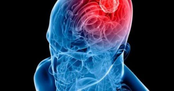Τα 7 σημάδια που πρέπει να γνωρίζετε για πιθανό όγκο στον εγκέφαλο