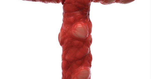 Εφάπαξ θεραπεία αξιοποιεί τα Τ κύτταρα του ίδιου του ασθενούς για την καταπολέμηση του καρκίνου