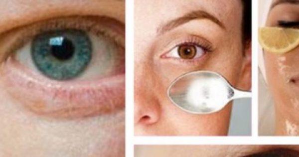 Πως να εξαφανίσετε τις σακούλες κάτω απο τα μάτια με φυσικούς τρόπους