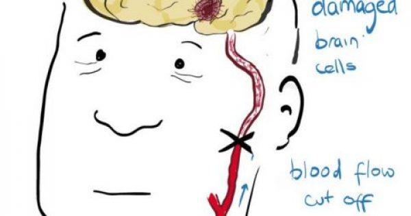 Εγκεφαλικό επεισόδιο: 6 κοινά σημάδια που σας προειδοποιούν