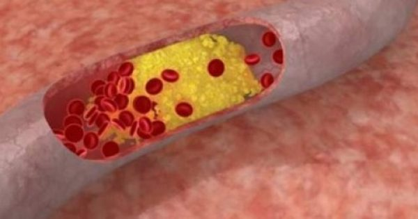 Nέα θεραπεία για την υψηλή «κακή» χοληστερόλη